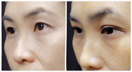 Double Eyelid Stitching Before & After 01