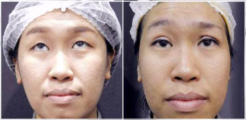 Double Eyelid Stitching Before After