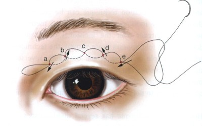 Double Eyelid Stitching Results Are Natural Looking
