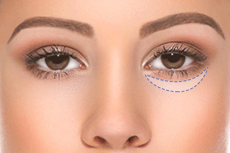 Eye Bag Removal Mesolipo Dr Chen Tai Ho Malaysia