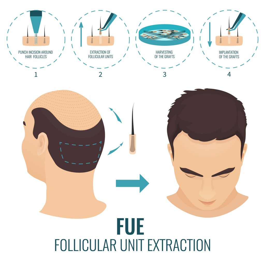 fue-hair-transplant-stages