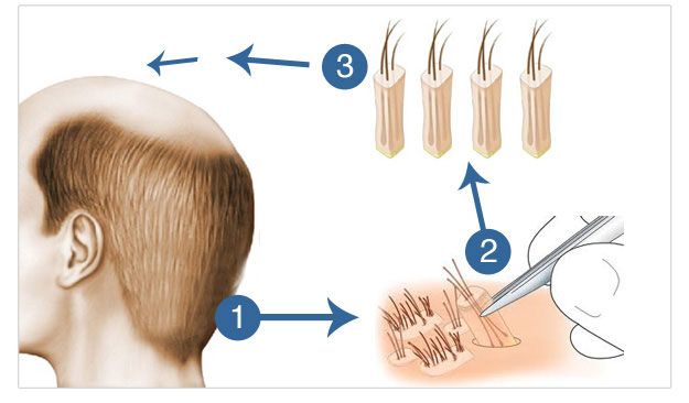 Follicular Unit Extraction (FUE) Hair Transplant