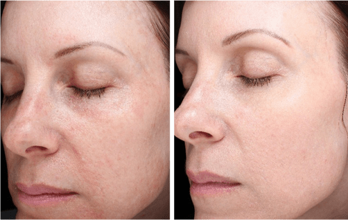 SkinPen-Before-and-After-8