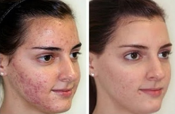 microdermabrasion-before-and-after-photos