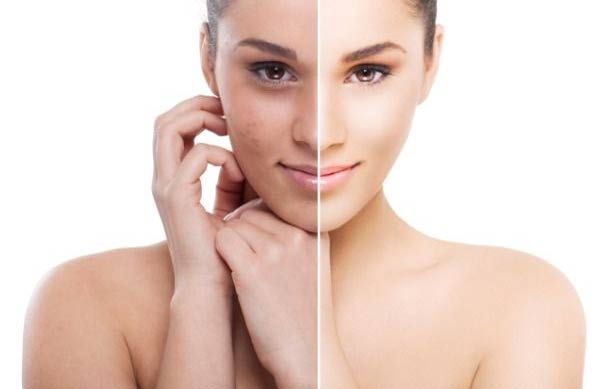 Skin Whitening Laser to Restore Skin Radiance and Complexion