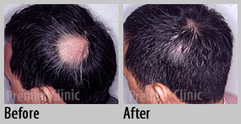 Premier Clinic Skin Diseases Treatment