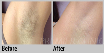 Permanent Laser Hair Removal, Premier Clinic