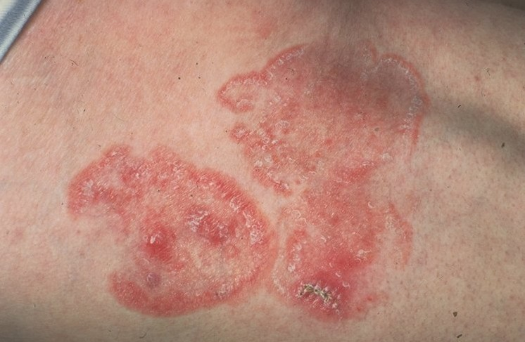 Mycosis Fungoida Treatment