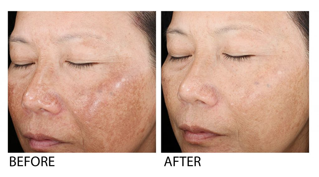 Skin Peel Before after