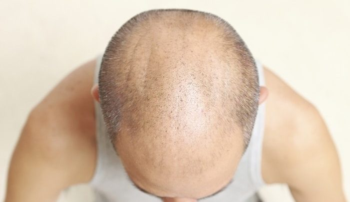 Hair Loss In Asia