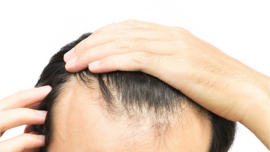 Hair Stem Cell