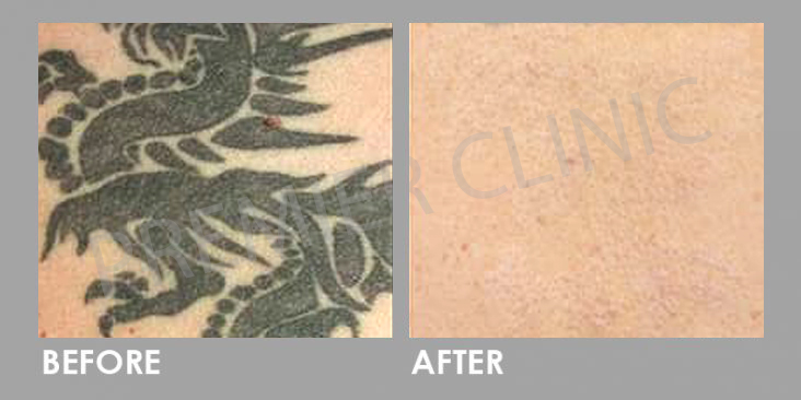 PICO Laser for tatto removal Before After