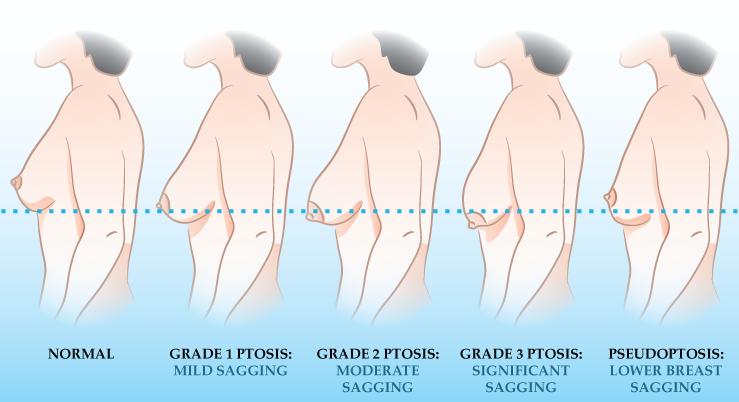 breast-ptosis