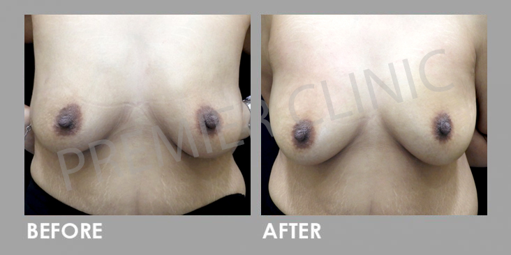 Breast PRP Before & After
