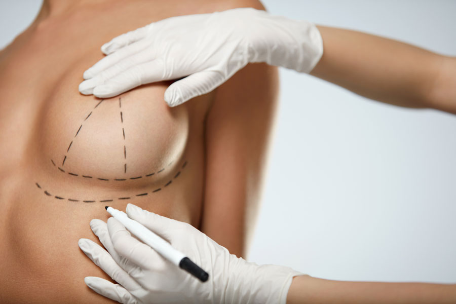 Botulinum Toxin for Breasts