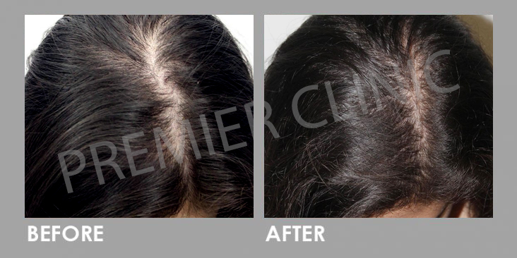 Premier Signature Hair Growth Laser Before After